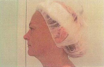 lypossage amp cellulite treatment in deland